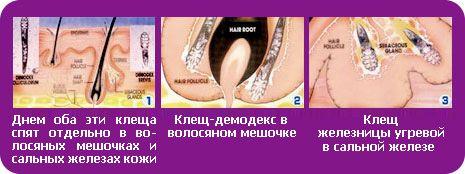 Чим лікувати демодекоз на обличчі у людини: препарати та аптечні засоби » журнал здоров'я iHealth 1