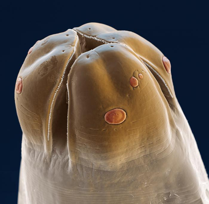 Аскарида под микроскопом