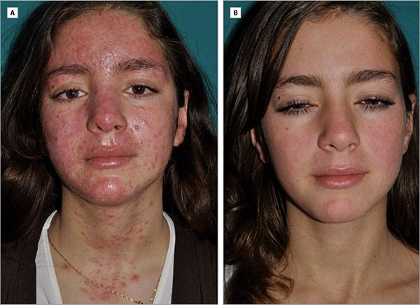 Чим лікувати демодекоз на обличчі у людини: препарати та аптечні засоби » журнал здоров'я iHealth