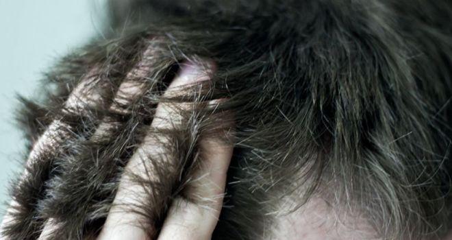 демодекоз волосистой части головы лечение