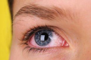 Глазной токсокароз