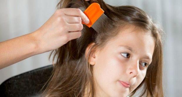 Как вывести вшей и гнид: 7 лучших способов удаления вшей