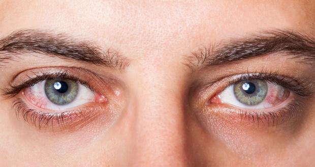 Глазной токсокароз у людей