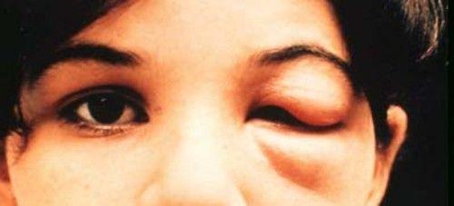 болезнь шагаса на глазу