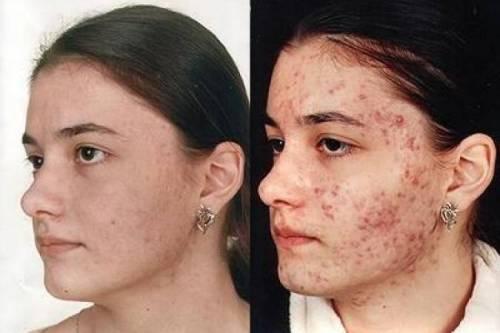 Кліщ демодекс і хвороба демодекоз. Симптоми, діагностика і лікування » журнал здоров'я iHealth 1