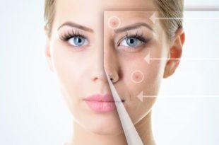 демодекса на коже лица