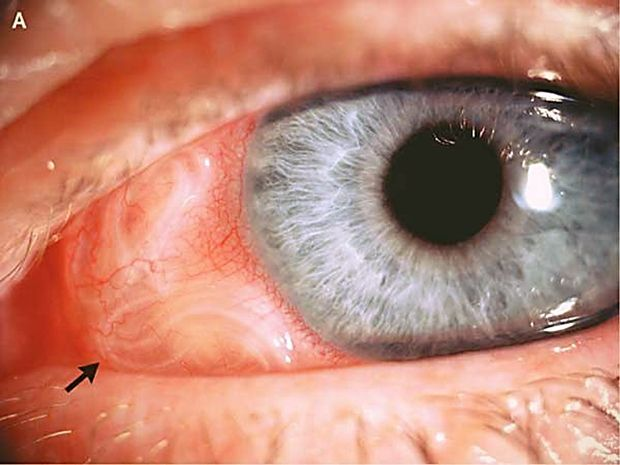 глисты в глазах