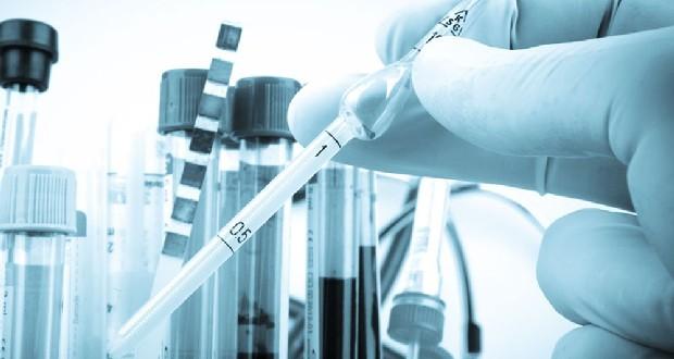 Аналіз на токсоплазмоз: що таке, як здавати, розшифровка результатів » журнал здоров'я iHealth 3