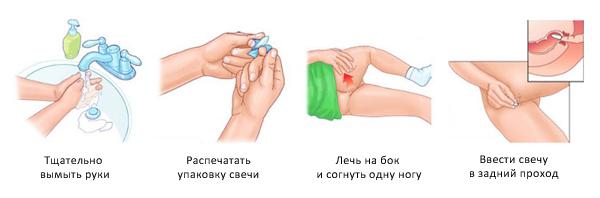 Свічки Ворміл: інструкція по застосуванню для дорослих і дітей, протипоказання » журнал здоров'я iHealth 3
