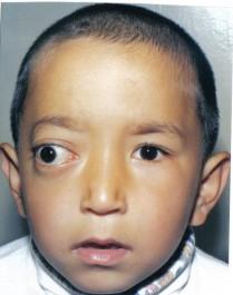 Паразити в очах людини: причини, симптоми, діагностика, лікування, профілактика » журнал здоров'я iHealth 3