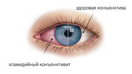 Хламидийная инфекция глаз симптомы