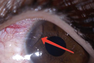 Паразити в очах людини: причини, симптоми, діагностика, лікування, профілактика » журнал здоров'я iHealth 2