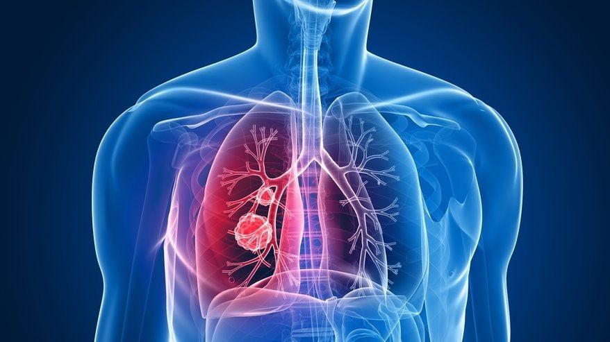 альвеококкоз легких