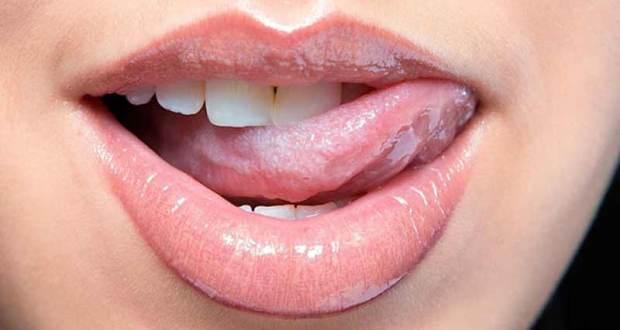 хламидиозе во рту