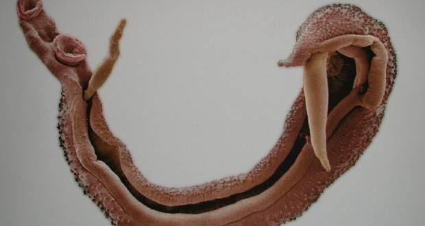 Шистосомоз у взрослых симптомы и лечение